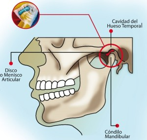 01-ATM-fisioterapia-odontologia